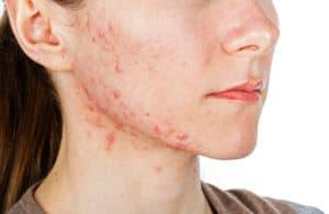 chanvre traitement acné