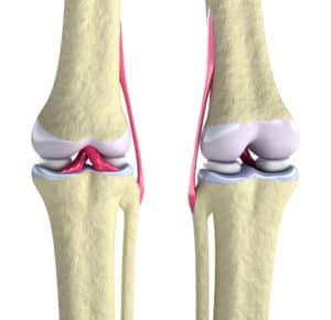 cartilage et articulation du genoux, arthrose et CBD