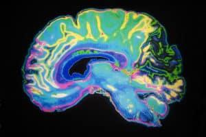 cerveau, parkinson et CBD