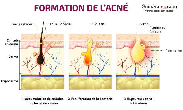 formation de l'acné