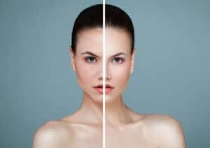 gemme qui a de la couperose. Avant et après traitement.