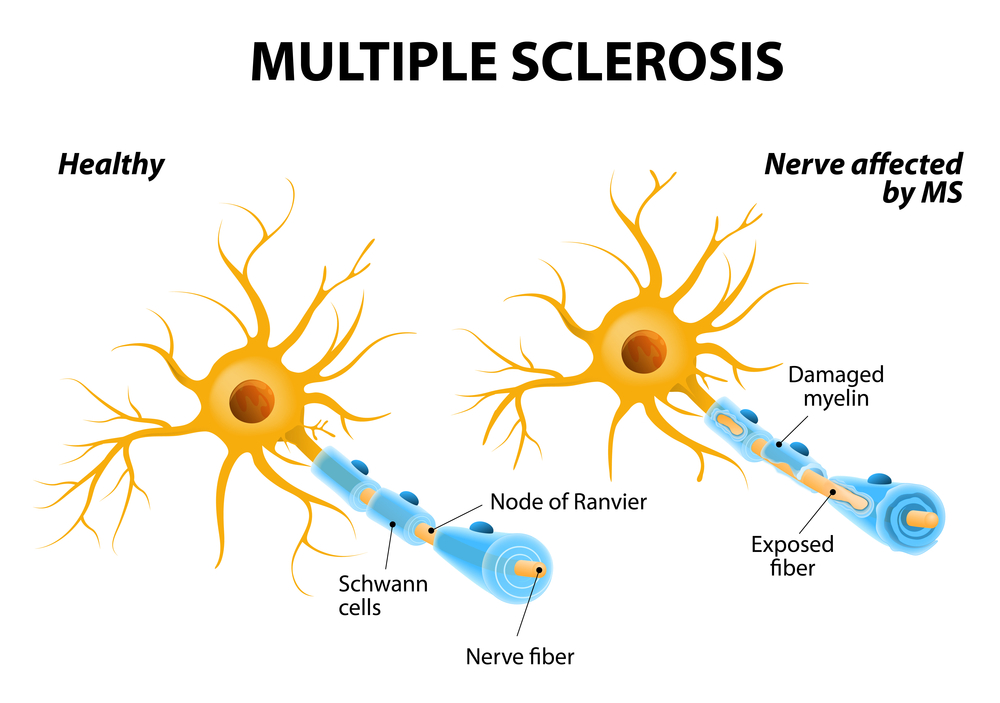 Le CBD agit comme neuroprotecteur et diminue les symptômes de la sclérose en plaques.