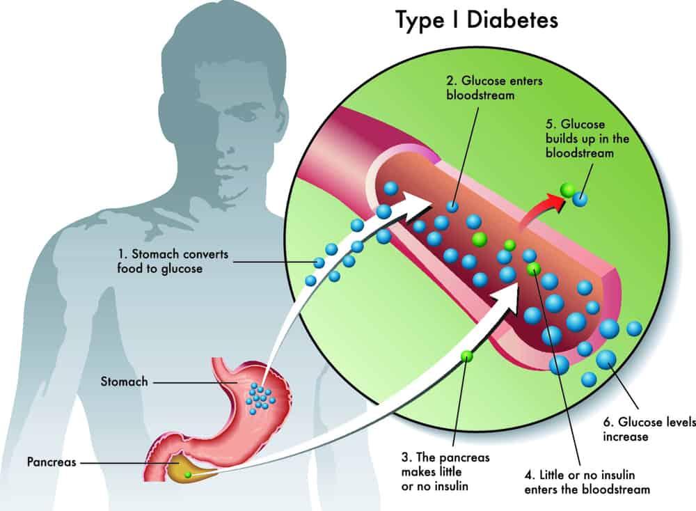 le diabète de type 1 est le moins courant.