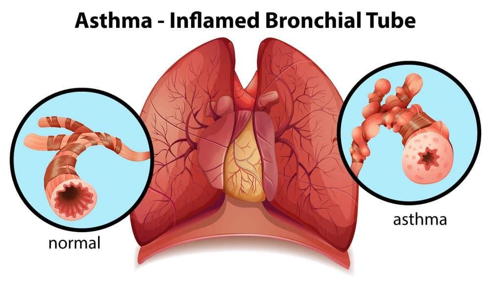 Les bronches des asthmatiques se réduisent avec les crises et les allergies. Le CBD est un excellent complément alimentaire qui permet de lutter contre l'asthme.