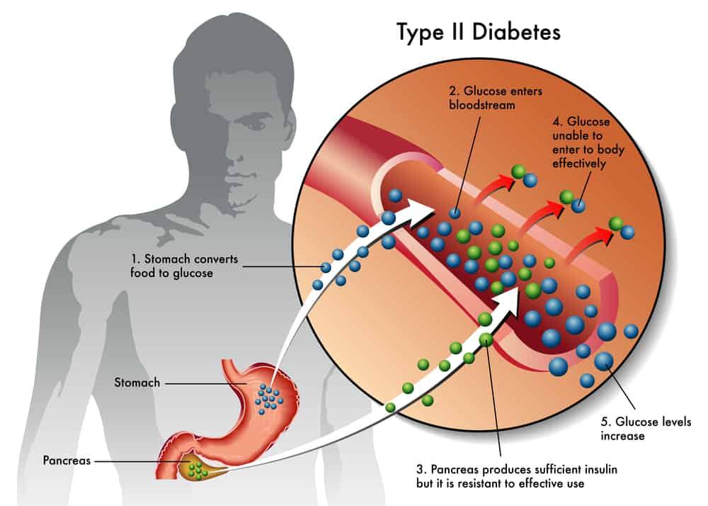 le CBD semblerait être efficace contre le diabète de type 2